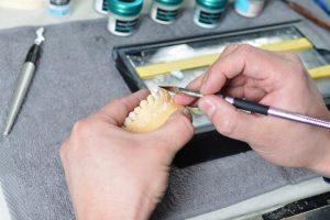 протезирование Кременчуг стоматолог