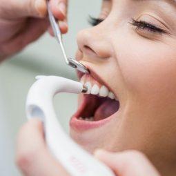 стоматология Кременчуг реставрация