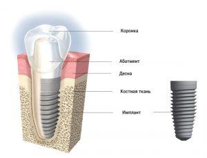 имплантация зубов кременчуг