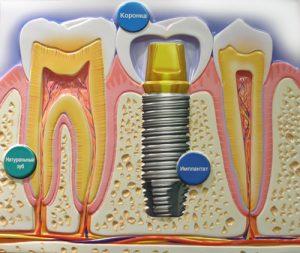имплантаты зубов, имплант
