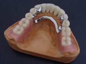 стоматолог протез кременчуг